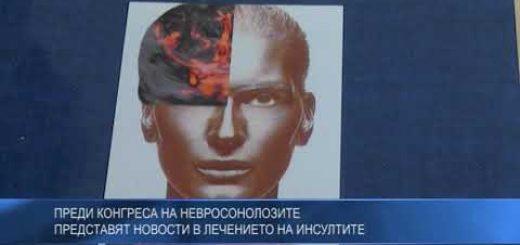 Преди конгреса на невросонолозите представят новости в лечението на инсултите